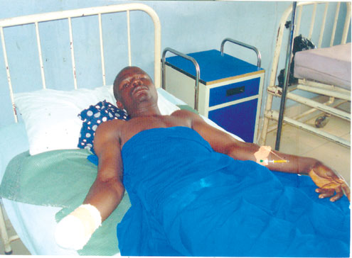 Adekoya Arowosegbe nursing his amputated wrist in hospital.