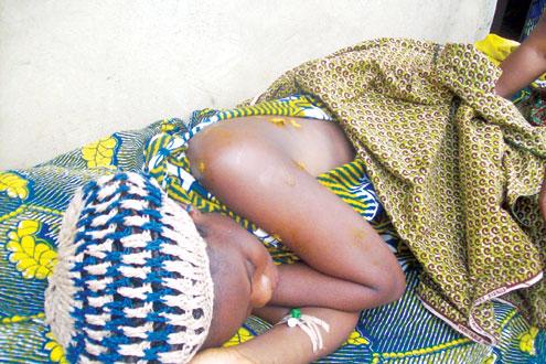 Miss 'Antelope' Enechejo on her hospital bed.