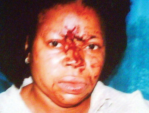 Ngozi, stabbed in the face.