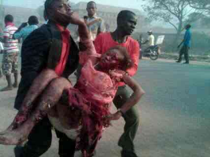 one of the Madala victims this morning