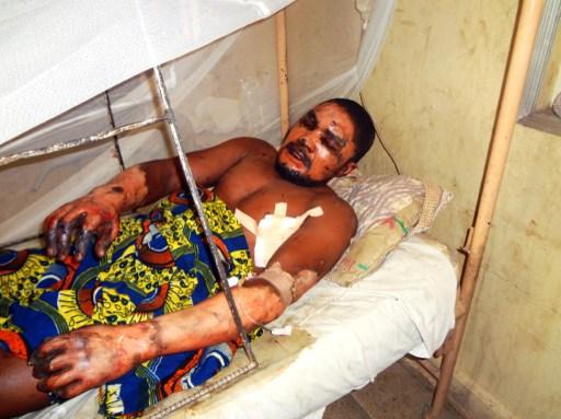 Bomb victim: emmanuel Bassey
