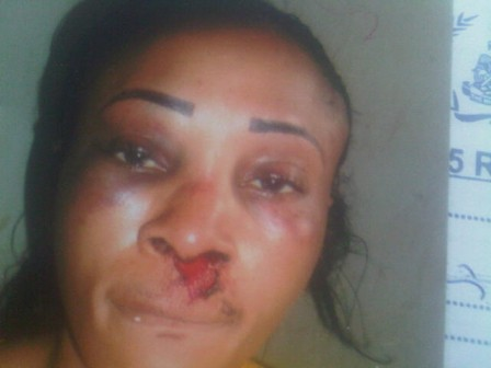 BLOODIED NOSE... Obasuyi Abimbola, a landlady battered by her female tenant in Lagos