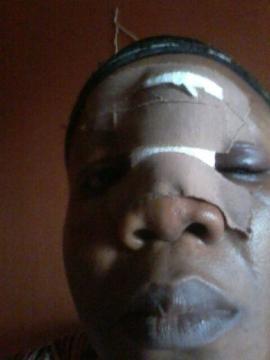 Gloria Izuakor battered by husband Jude