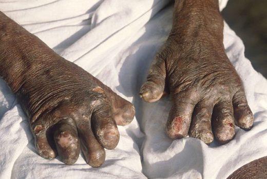 640px-Leprosy_deformities_hands