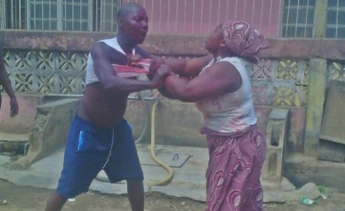 Man bites woman's breast during fight