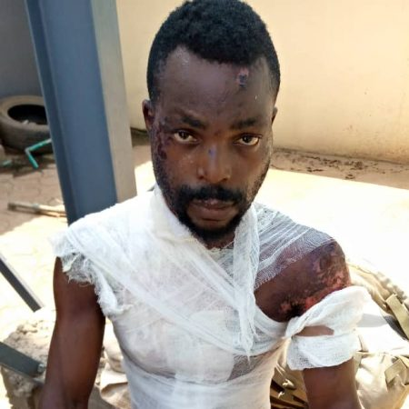 Peter Phillip with the injuries sustained from hot water poured on his by his wife