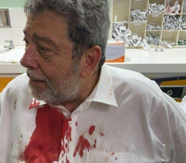 Injured Prime Minister Ralph Gonsalves