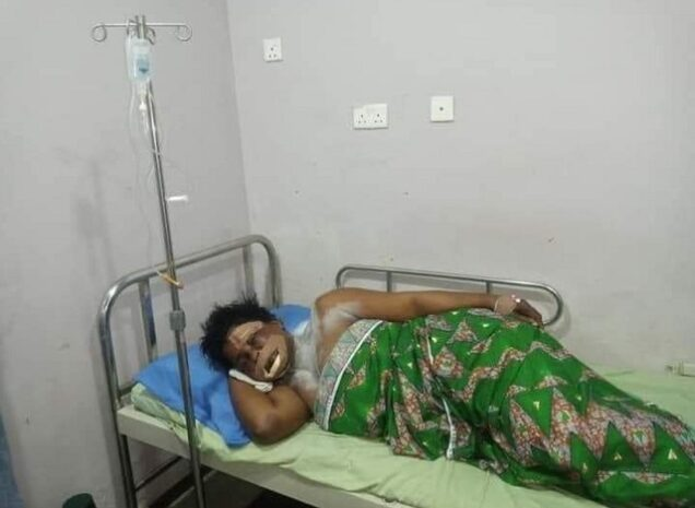 The-victim-on-her-hospital-bed